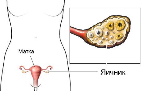 Фото:Что такое яичники?
